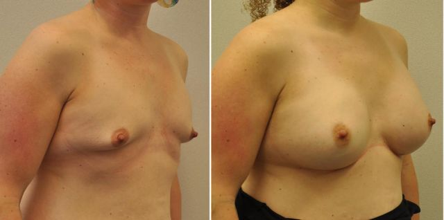 04be - Results Breast enlargement
