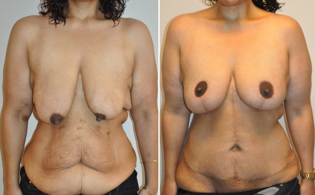 anel04 - Results Breast lift