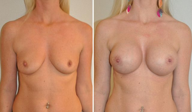 ave04 - Results Breast enlargement