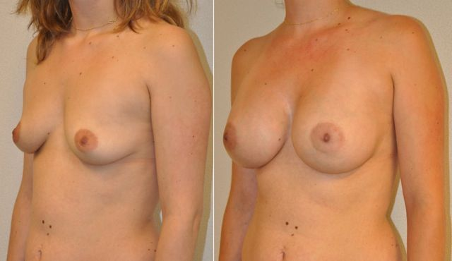 aw02 - Results Breast enlargement