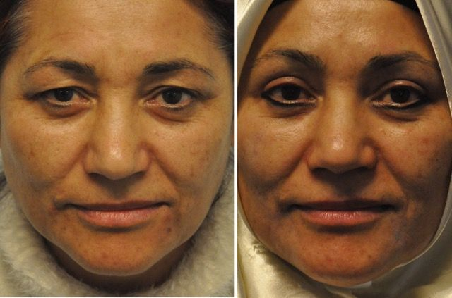 ayuk01 - Results Upper eyelid correction