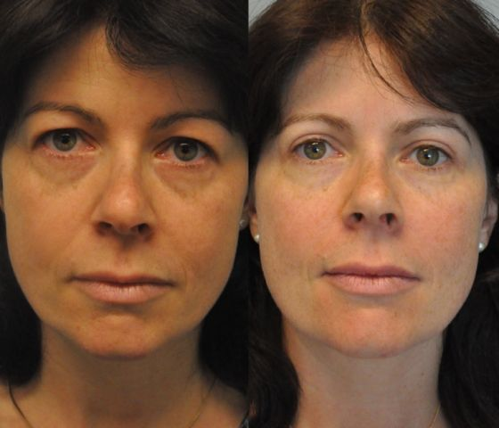bes01 - Results Upper eyelid correction