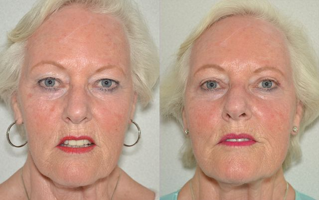 bol kalam 15093 - Results Upper eyelid correction
