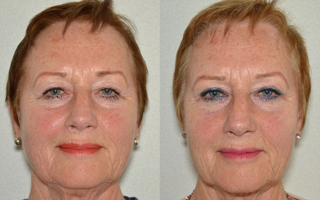 bol kalam 15094 - Results Upper eyelid correction