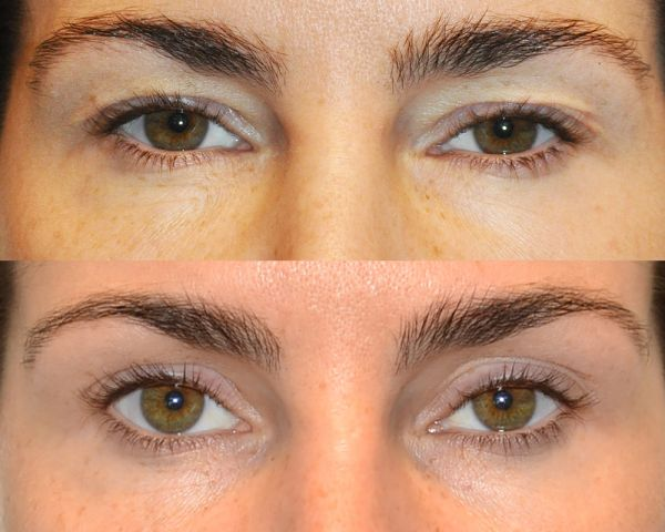 bol sietske - Results Upper eyelid correction