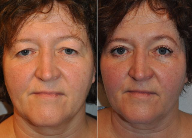 boo01 - Results Upper eyelid correction