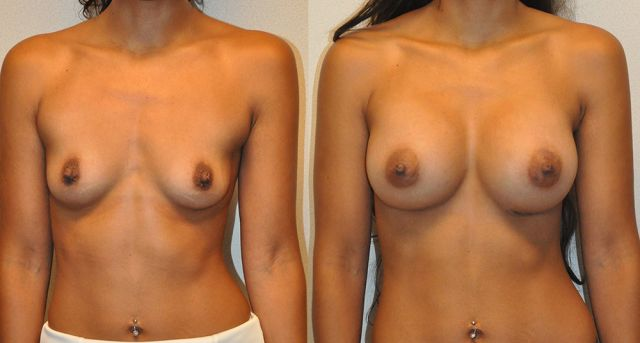 chi02 - Results Breast enlargement