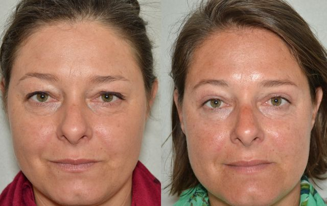 del232 - Results Upper eyelid correction