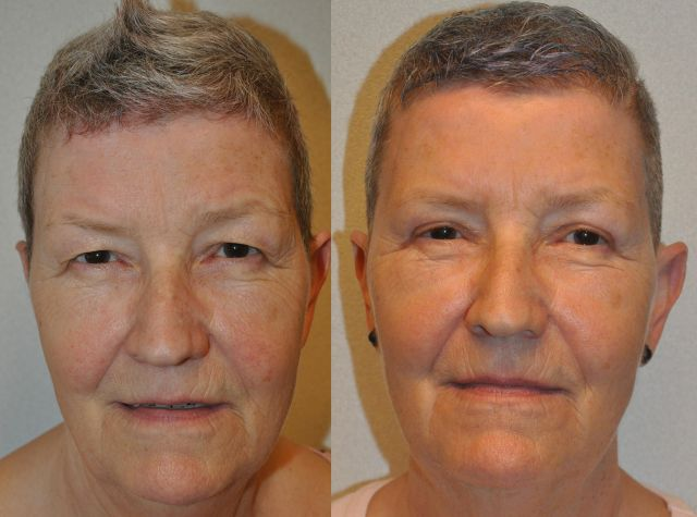 del434 - Results Upper eyelid correction