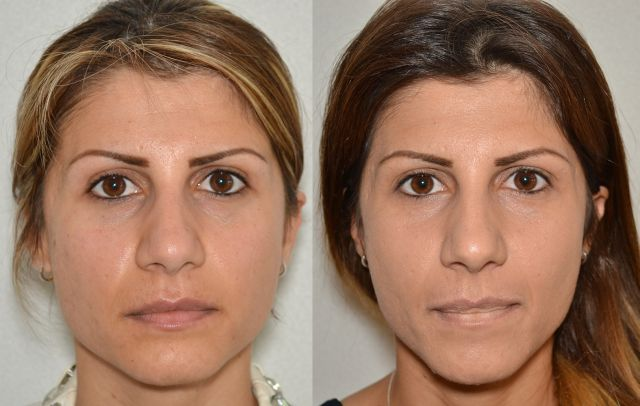 del551 - Results Upper eyelid correction