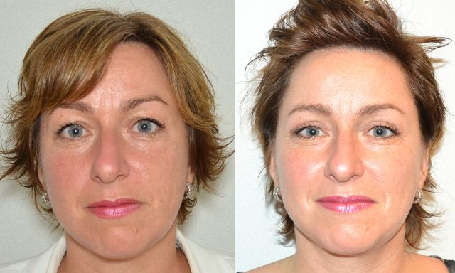 del554 - Results Upper eyelid correction