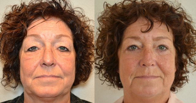 del661 - Results Upper eyelid correction