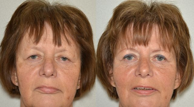 del662 - Results Upper eyelid correction