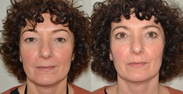 del667 - Results Upper eyelid correction