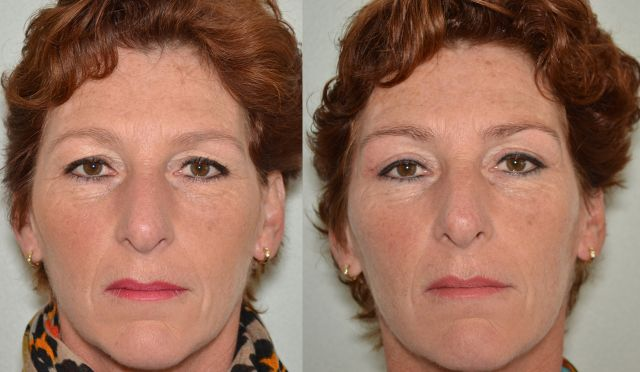 del722 - Results Upper eyelid correction
