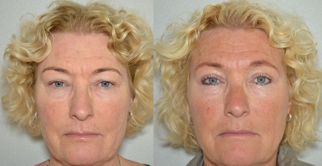 del771 - Results Upper eyelid correction