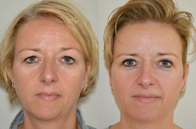 del878 - Results Upper eyelid correction