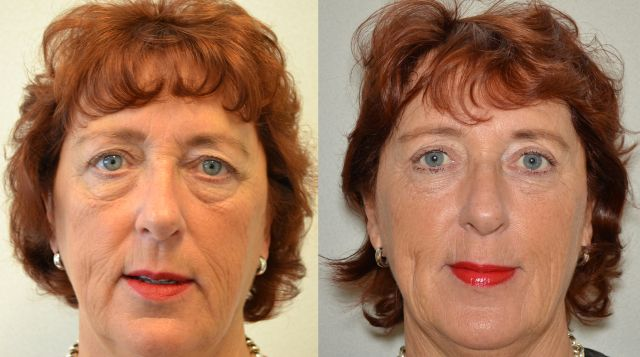 del881 - Results Upper eyelid correction