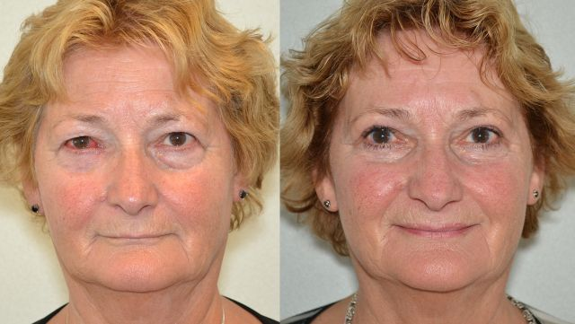 del885 - Results Upper eyelid correction