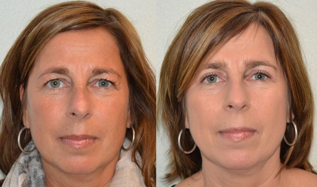 del900 - Results Upper eyelid correction