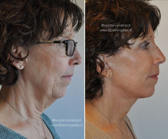 facelift wouter1 - Results Facelift