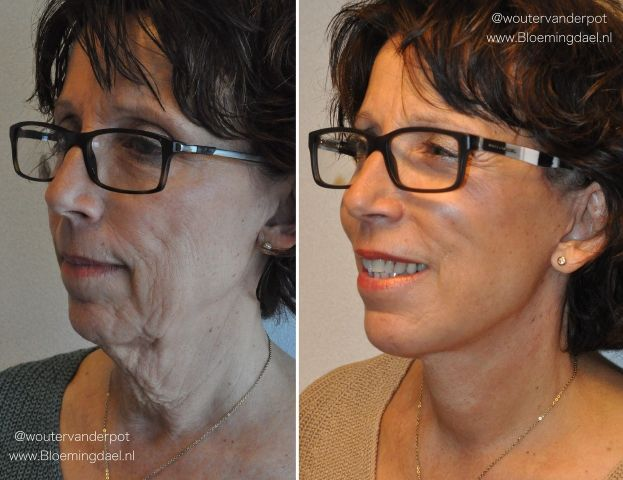 facelift wouter2 - Results Facelift