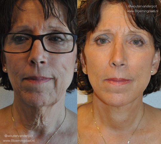 facelift wouter3 - Results Facelift
