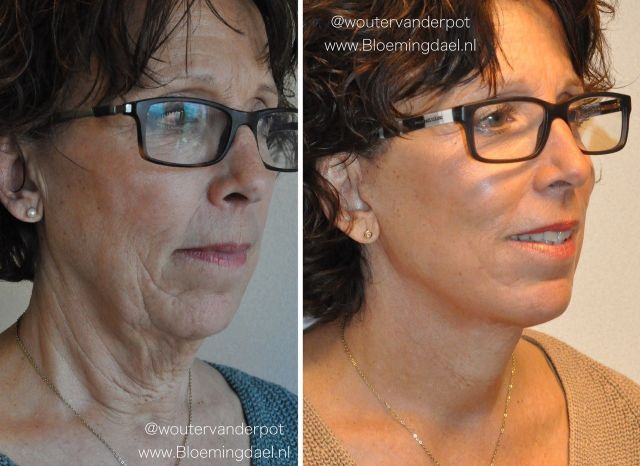 facelift wouter4 - Results Facelift