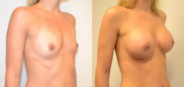 gty6 - Results Breast enlargement