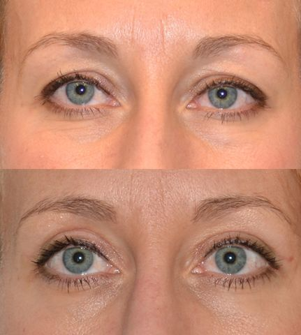 joost frf - Results Upper eyelid correction