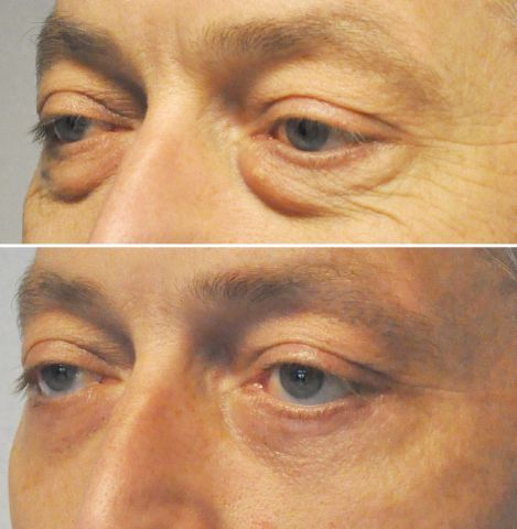 ooglid onder wouter - Results Undereyelid correction