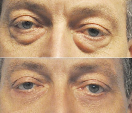 ooglid wouter - Results Undereyelid correction
