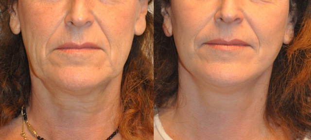 akra01 - Results Facelift