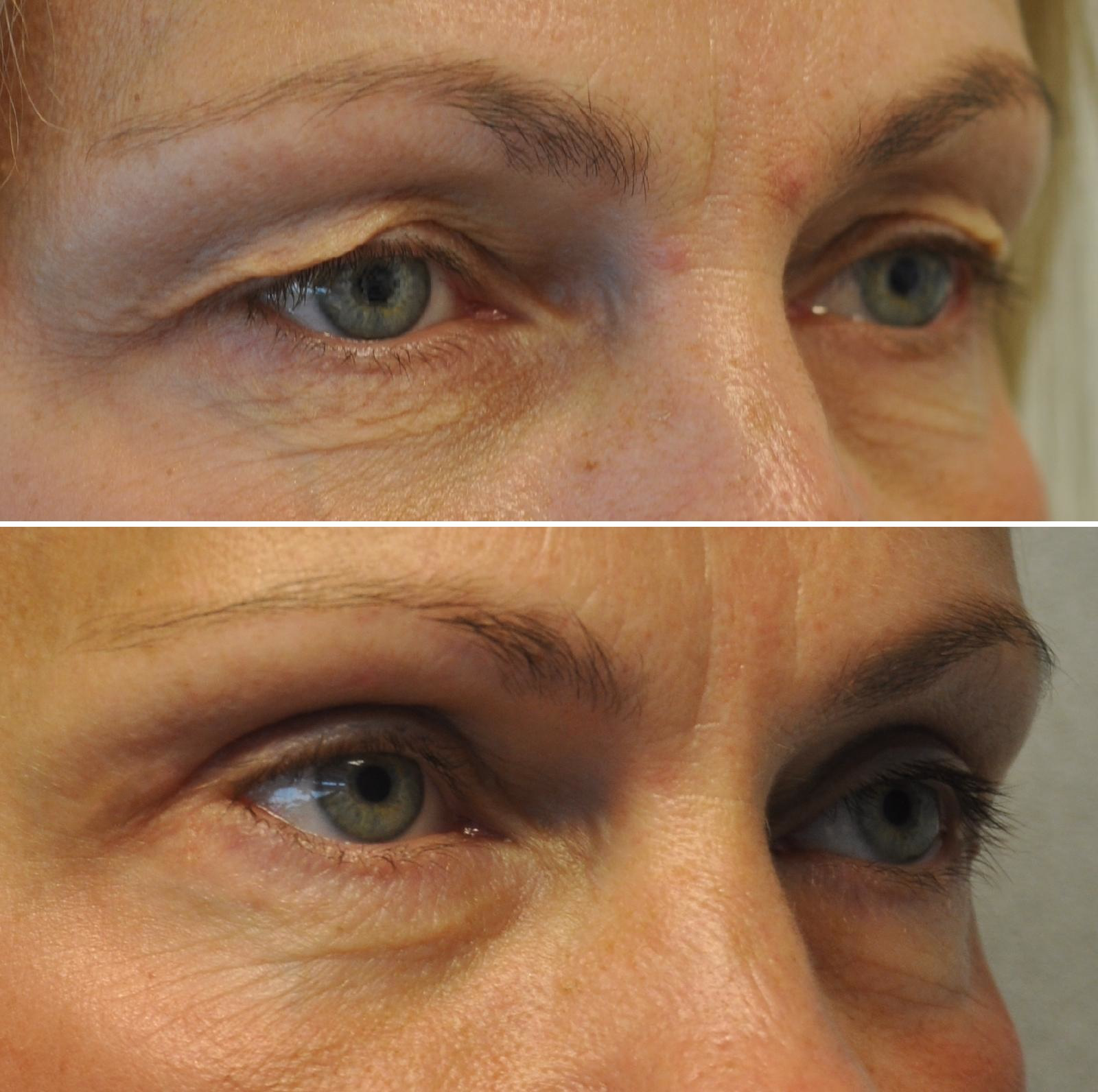 bds02 - Results Upper eyelid correction