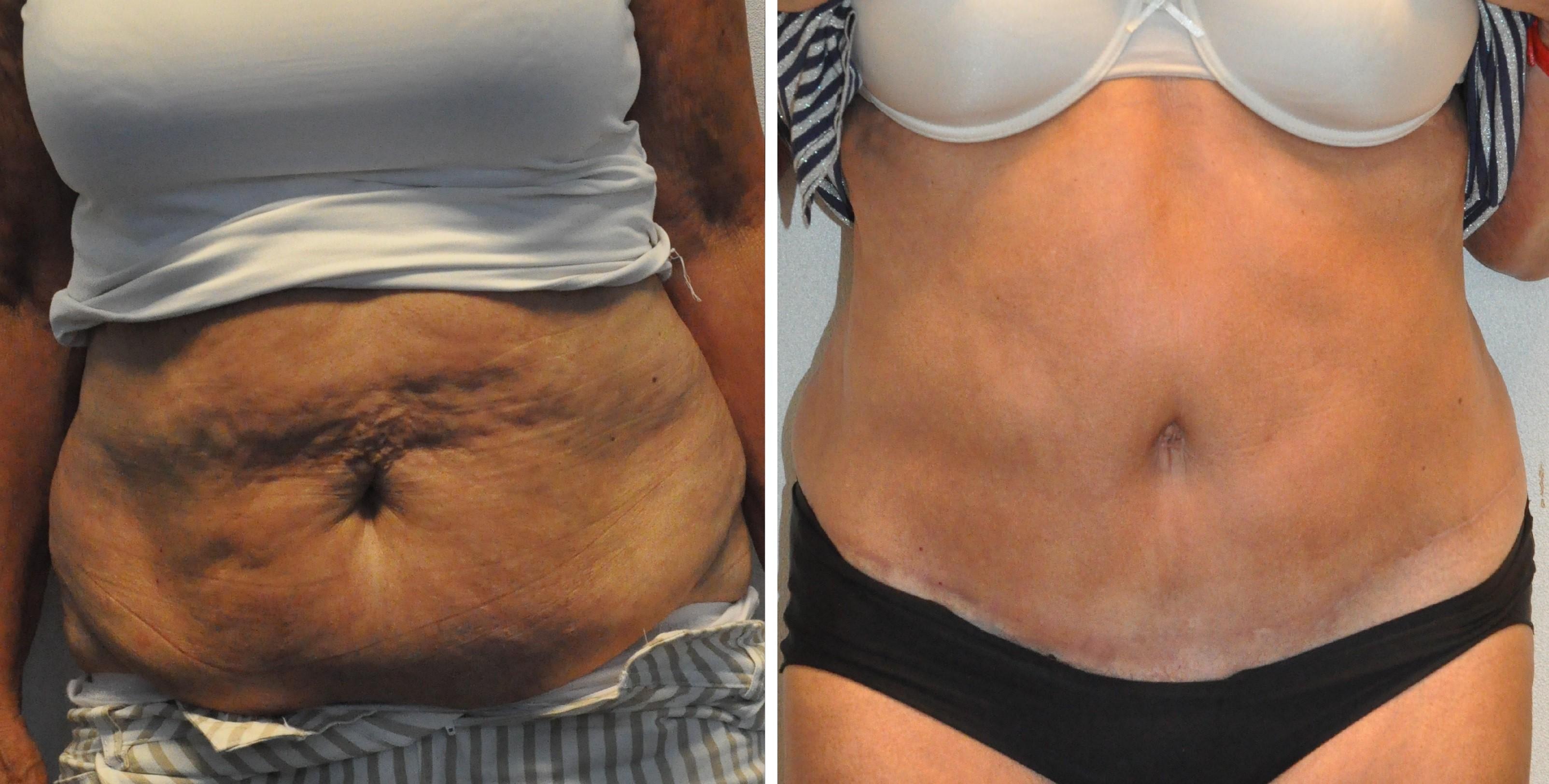 buikwandcorrectie 12 - Results Tummy tuck