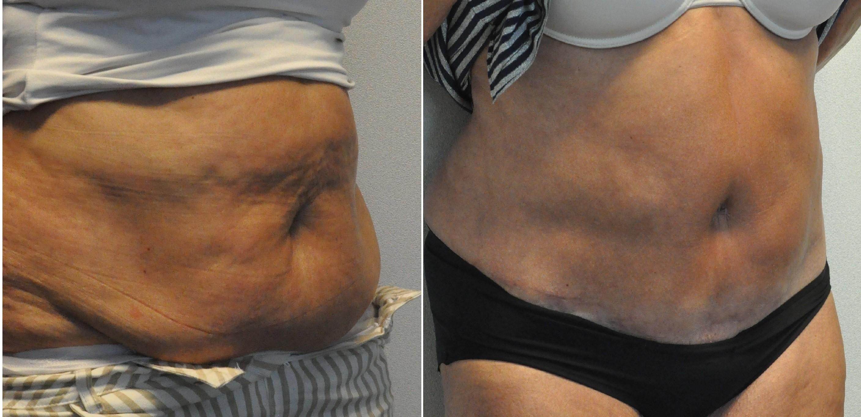 buikwandcorrectie 14 - Results Tummy tuck