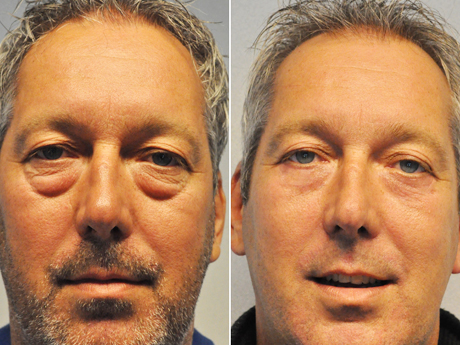 foto wouter online - Results Undereyelid correction