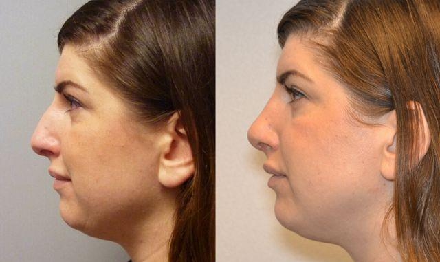 neus voorenna - Results Nosecorrection