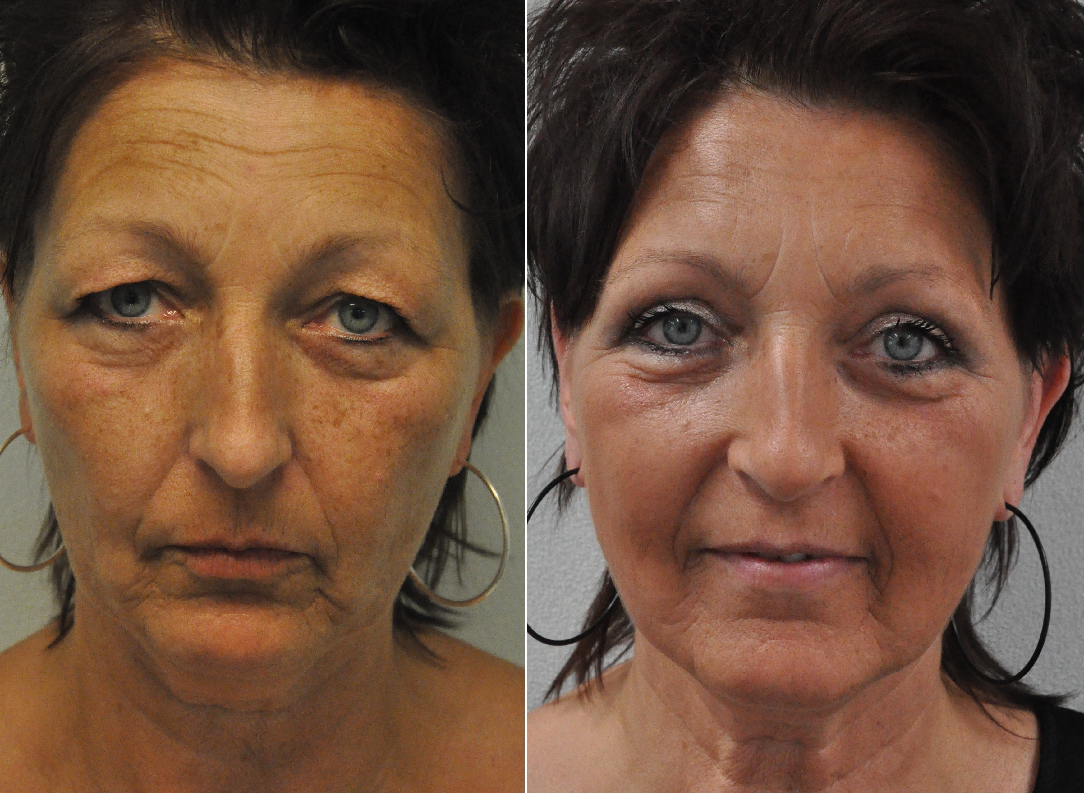 ooglidcor 2 - Results Upper eyelid correction