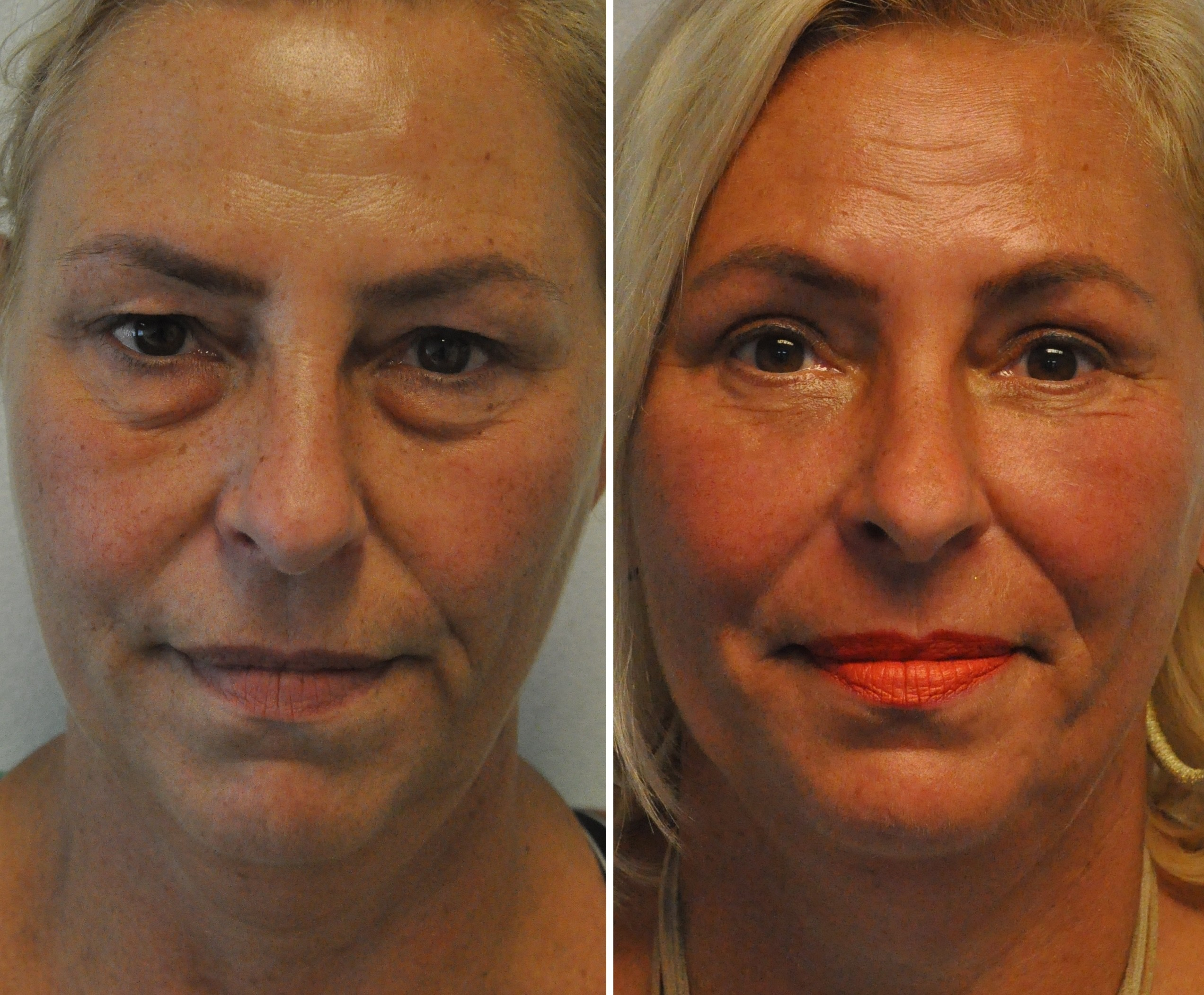 ooglidcor 3 - Results Undereyelid correction