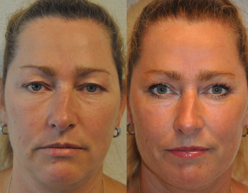 ooglidcorrectie 1 11 2016 - Results Upper eyelid correction