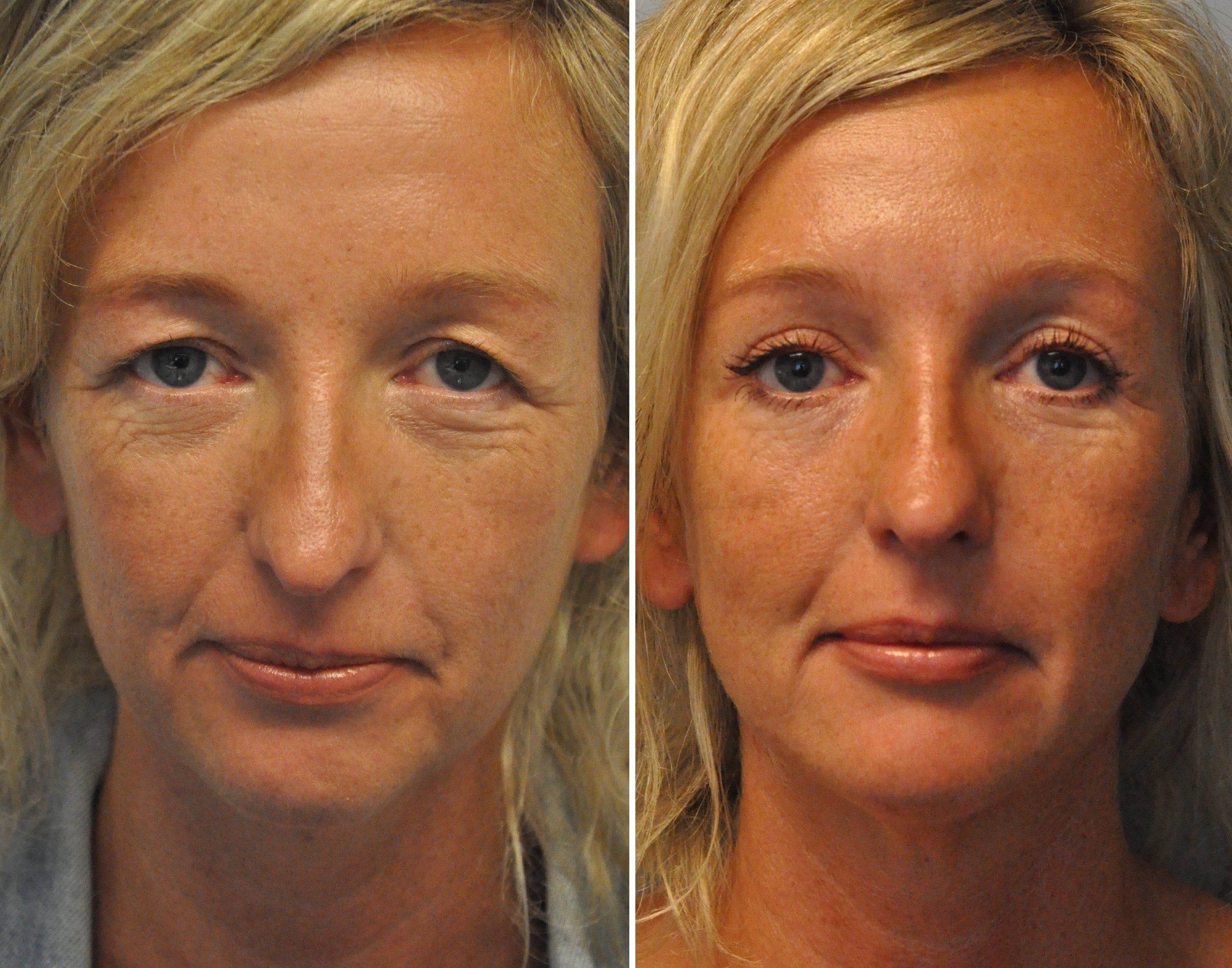 ooglidcorrectie 10 - Results Upper eyelid correction