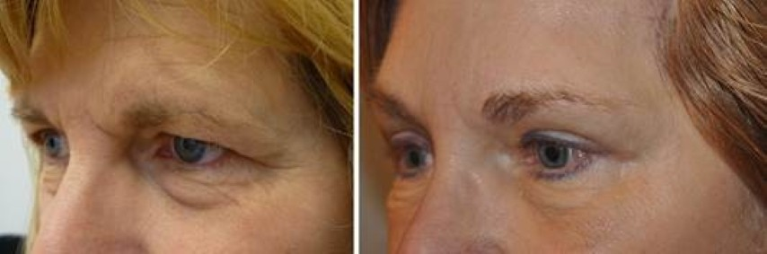 ooglidcorrectie 5 - Results Upper eyelid correction