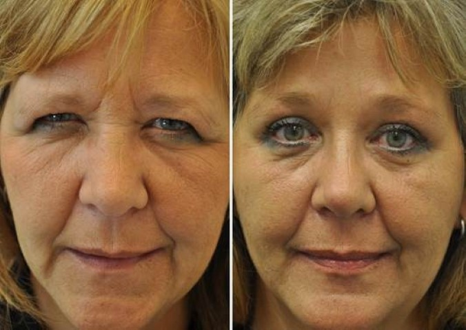 ooglidcorrectie 6 - Results Upper eyelid correction