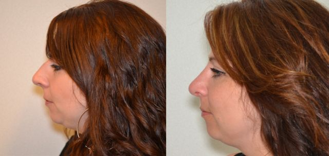 trc - Results Nosecorrection