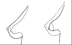 tubulaire borsten 1 - Tubulaire of tubereuze borsten: bij herkenning goed te corrigeren