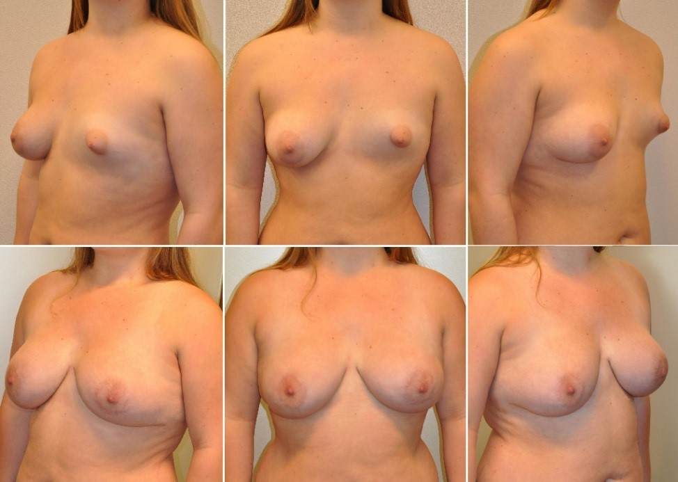 tur2 - Results Tuberous breasts