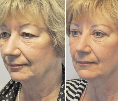 voor na - Results Upper eyelid correction