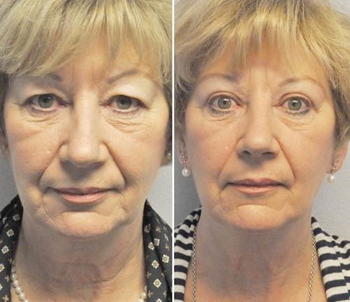voor na1 - Results Upper eyelid correction