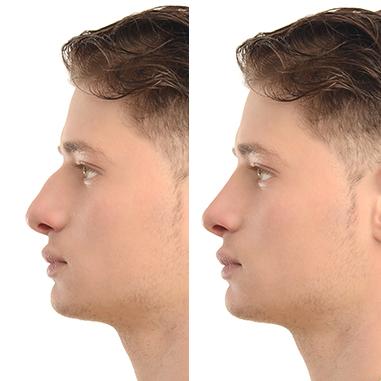 voorennaneus - De neus uitgelicht